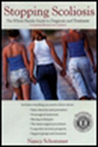 Stopping Scoliosis: The Complete Guide to Diagnosis and Treatment